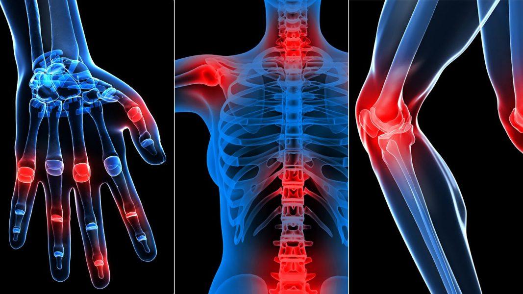 a könyökízület posztraumás artrózisának kezelése