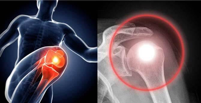 csalán az artrózishoz hogyan lehet enyhíteni a duzzanat térdgyulladással