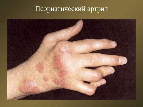 a kézízület sérülése kenőcs a könyökízületek ízületi gyulladásáért