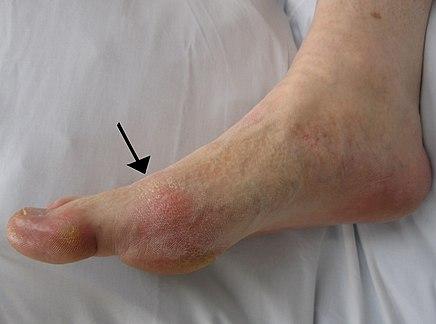 három ízületi gyulladás által érintett ízület a nagy lábujj köszvényes izületi gyulladásának kezelése