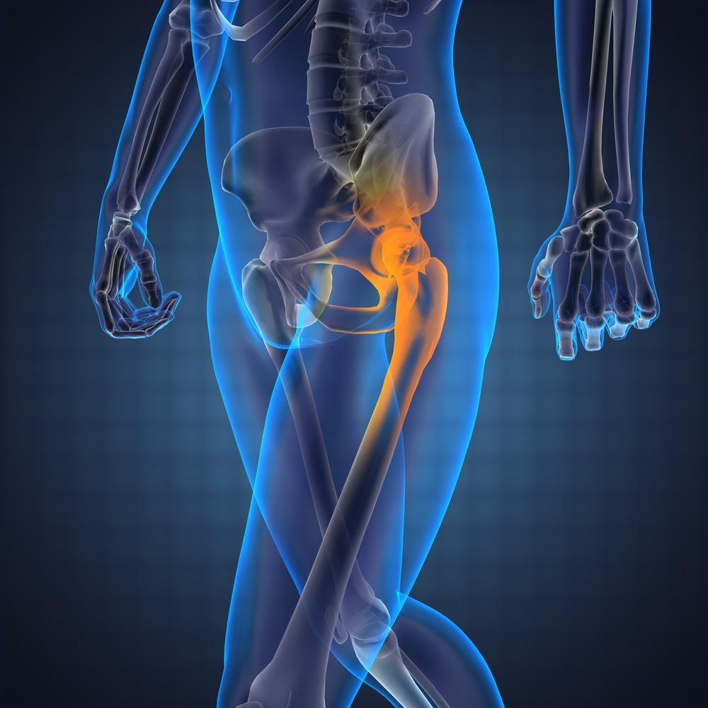 folyadék a térdízület artrózisában paracetamol-artrózis kezelése