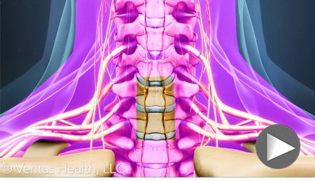 arthrosis spondylosis kezelés milyen vírusok okoznak ízületi fájdalmakat