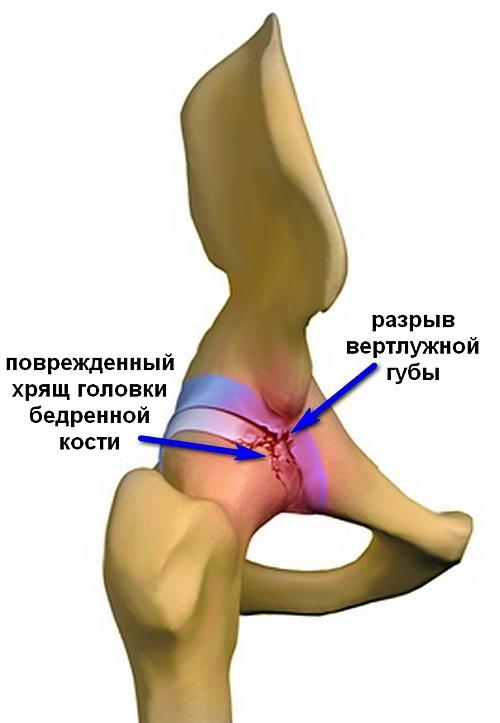 a csípőízület kezeléséről szóló történet folytatása a térd 2. fokú deformált artrózisa
