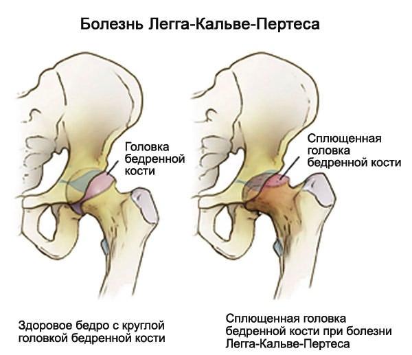 csípő fájdalom csípő láb
