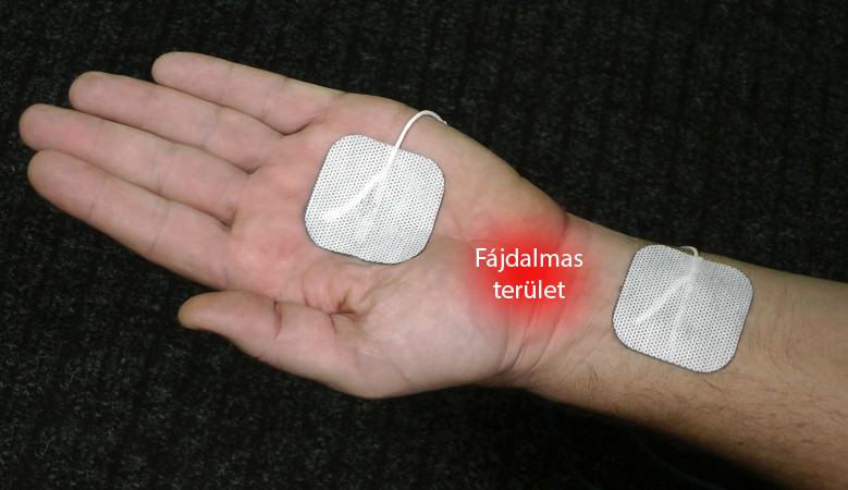 a bal térdízület gonartrosisának kezelése térdfájdalomra gyógyszer