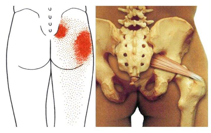 a jobb bokaízület ízületi gyulladása tenyér az ízületi fájdalom