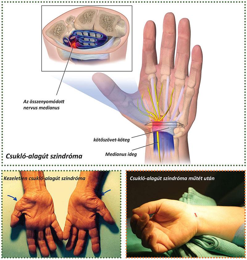 ízületi görcsök kezelése orvi ízületi fájdalom után