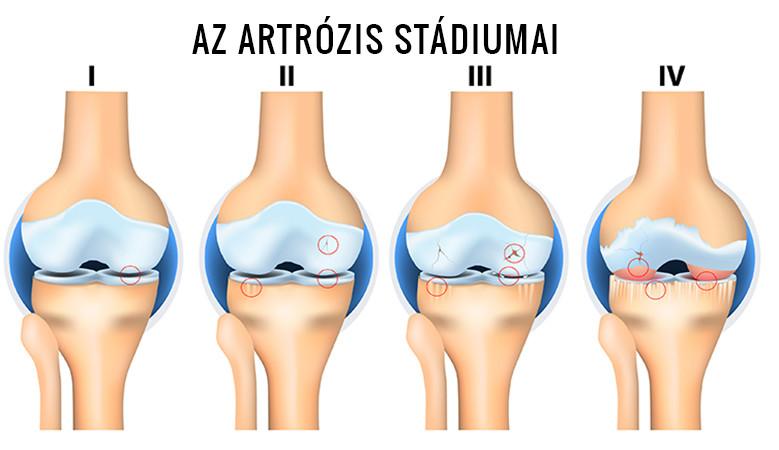 eszközök artrózis kezelésére térd sérülést okoz