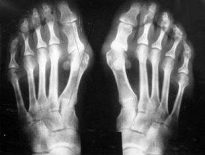 a váll-váll artrózisa az ízületek természetes megerősítése