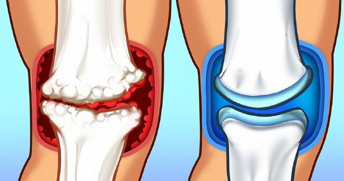 magnézium ízületi fájdalom