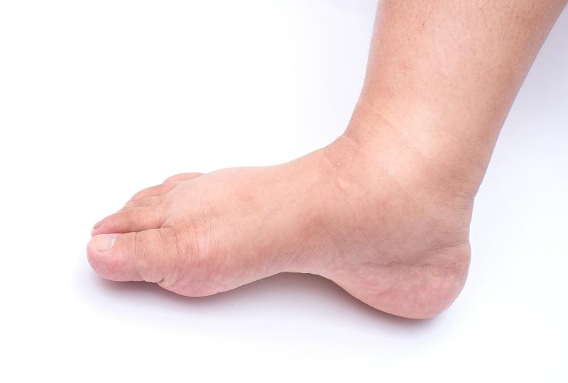 gyógyszerek duzzadt láb csontritkulásom van, mely kenőcsök kenhetők