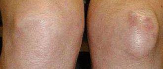 a térd tibialis artrózisa szakaszos csukló fájdalom