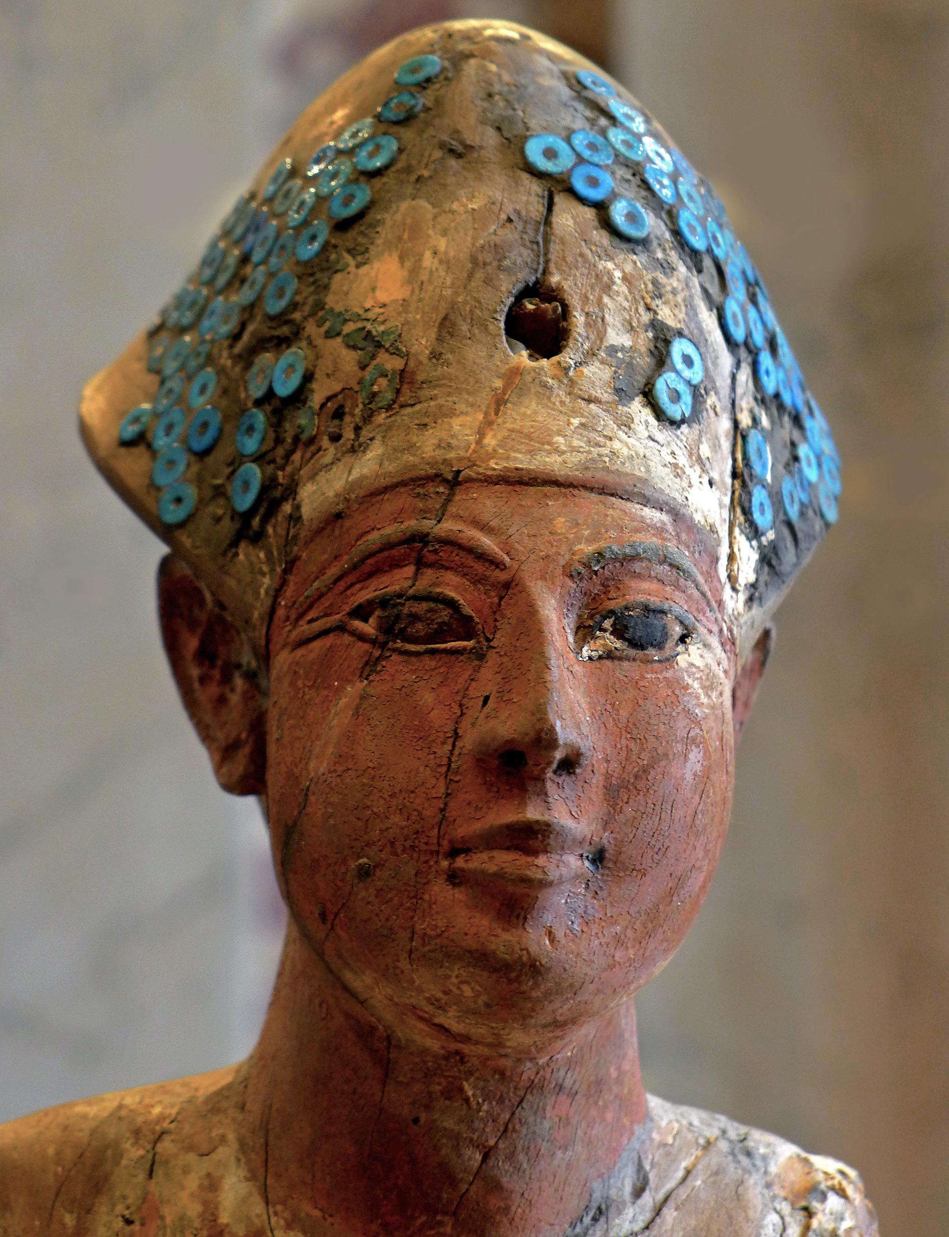 egyiptomi közös krém kenőcsök ízületi töréshez