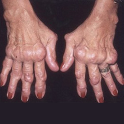 carpal artrosis és kezelése