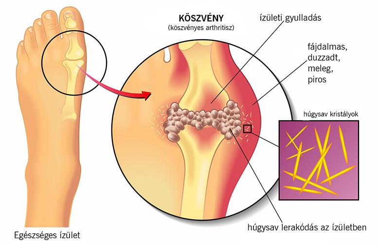 boka duzzanata és bőrpír testmozgás hiánya ízületi fájdalom