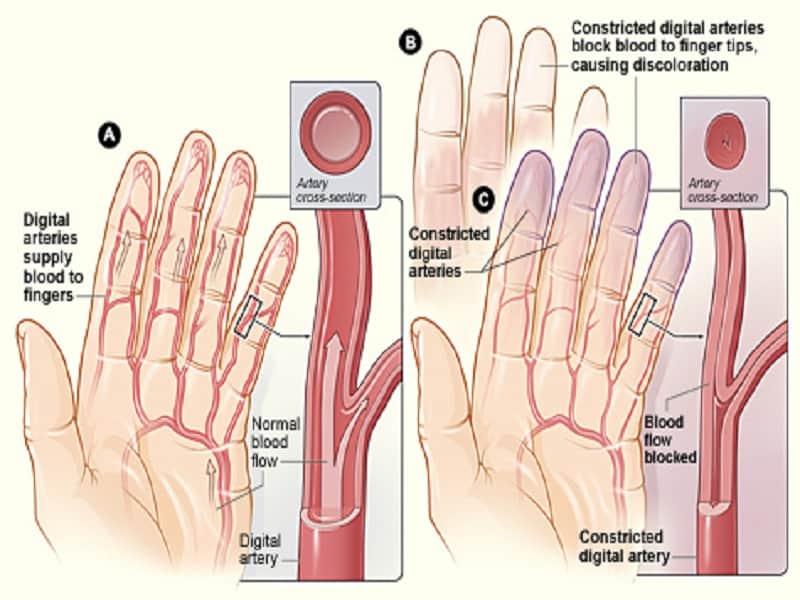 gyógyszer sportolók ízületeire és ínszalagjaira az ágyéki deformáló artrózis kezelése