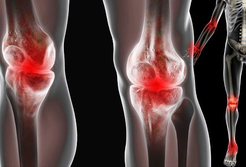 nyaki osteochondrozis diuretikumok