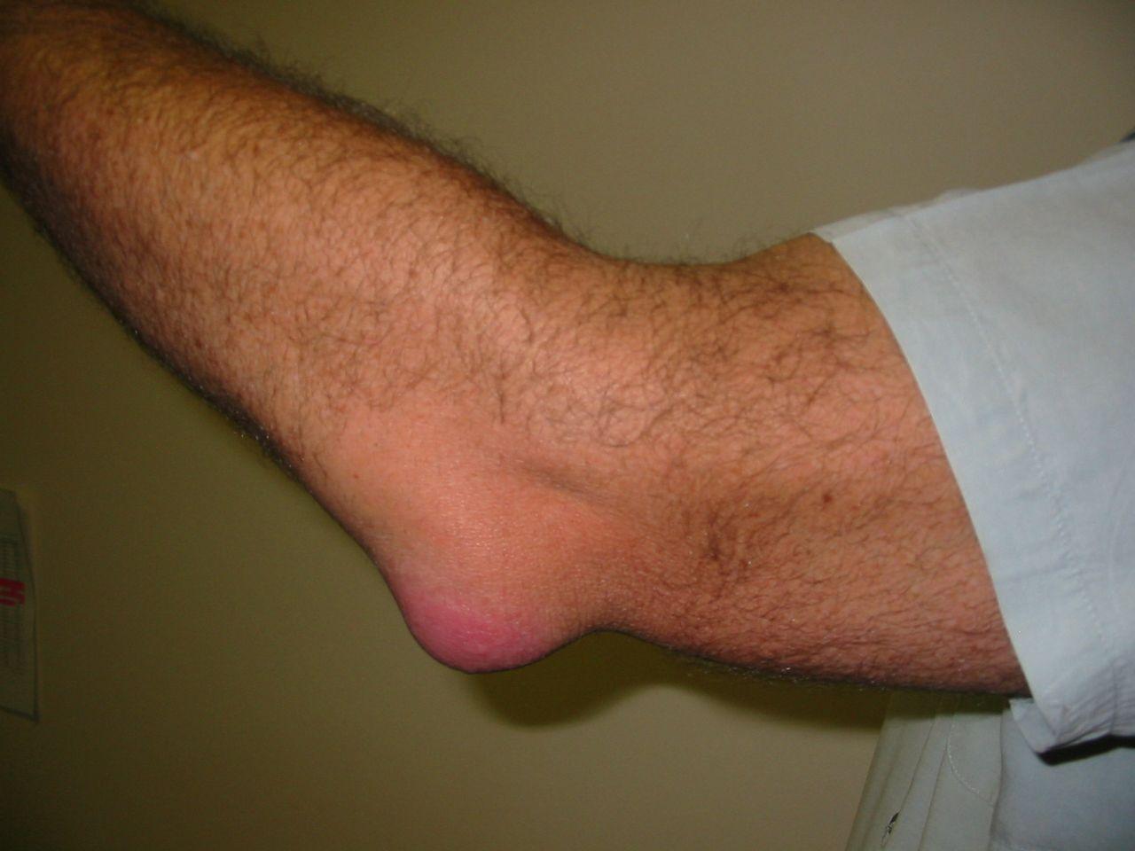 artrózis kezelés alumínium fóliával a csípőízület 2. szakaszának artrózisa