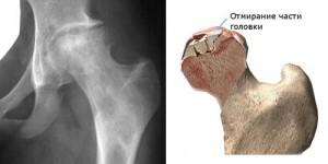 csípőízület artrózisának blokádja csípőízületek és térd ízületi gyulladása. kezelés
