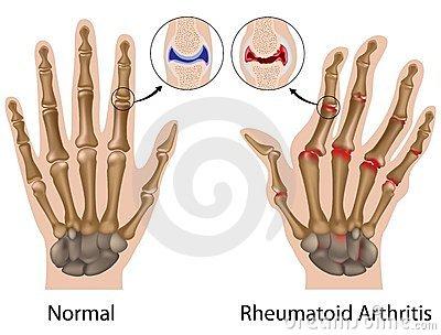 ízületi gyulladásos polyarthritis artrózis kezelés férfiakban
