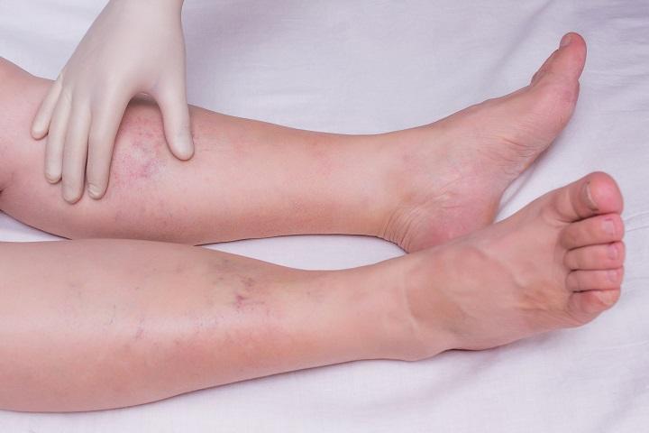 a láb duzzadásának okai