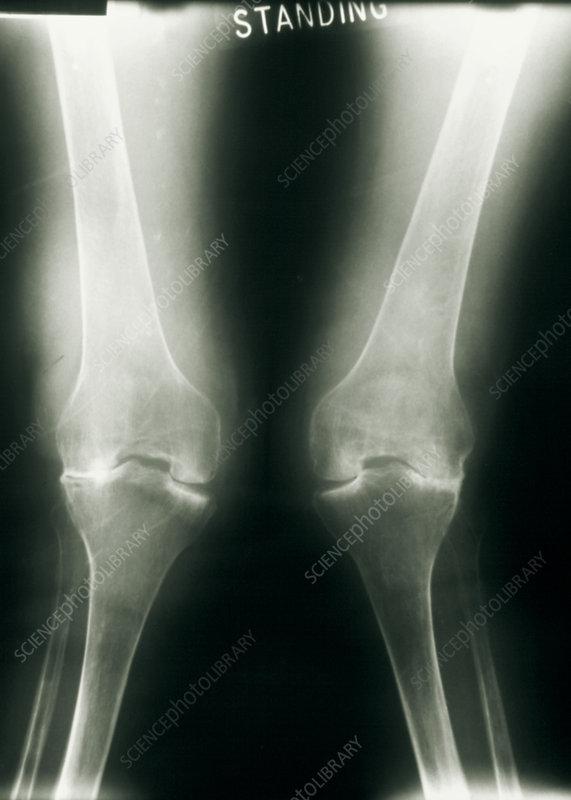 rheumatoid arthritis radiology knee élelmiszerzselatin artrózis kezelésére