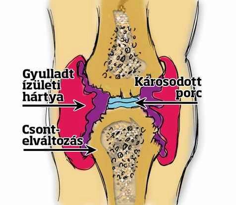 ízületi gyulladás csökkentheti az ízület duzzanatát