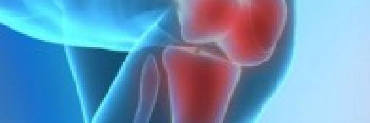 hogyan lehet meghatározni térdízületi gyulladást fájdalom az ízületek különböző helyein