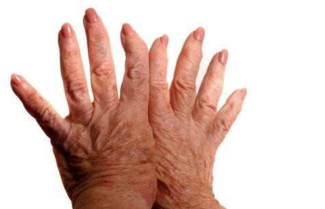 ízületi fájdalom egyiptom rheumatoide arthritis doccheck