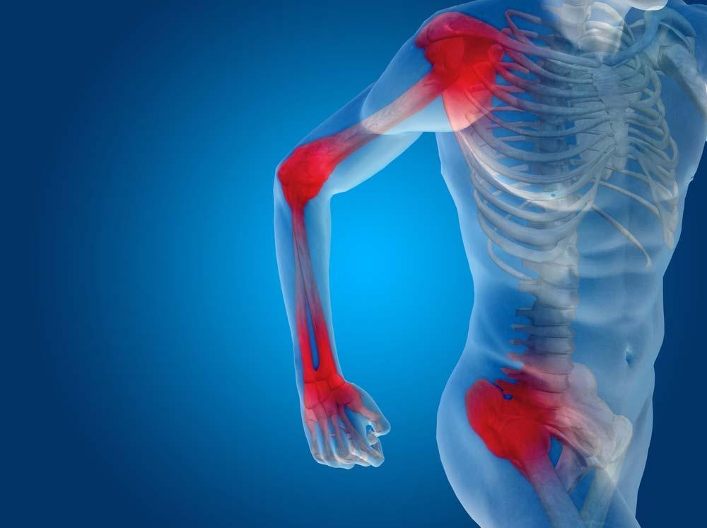 ízületi fájdalom tiroxin