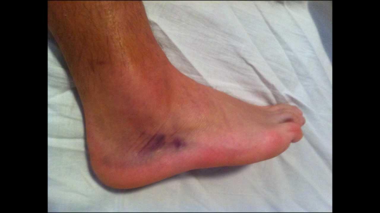 kezelés boka rándulás után térdízületi cipő artrózisa