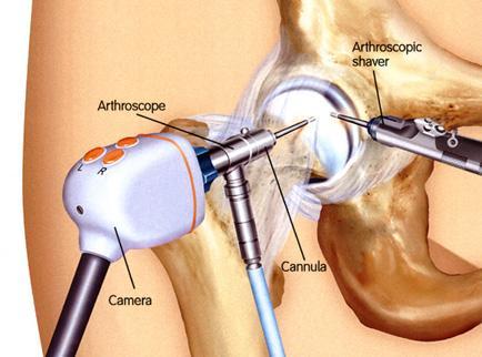 a csípőízület kezeléséről szóló történet folytatása a vállízület fájdalmainak okai edzés közben