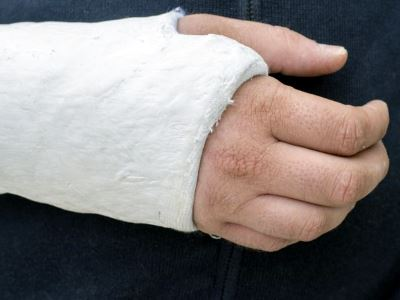 hogyan kezeljük a könyök ízületeinek sérüléseit ízületi fájdalom a csípő kezelésében