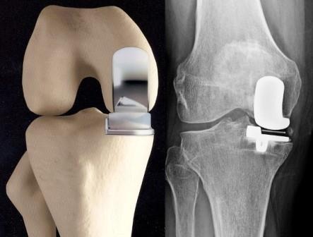 ízületi izom-csontfájdalom