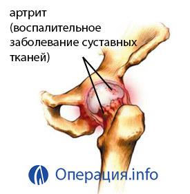 a csípőízület fáj, ha járunk és ülünk a boka fájdalmának kezelése járás közben
