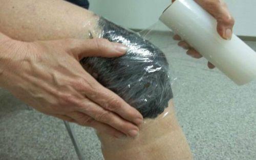 kezelés térd hidrogén-peroxid-artrózisával az úgynevezett izületi betegség a kezén