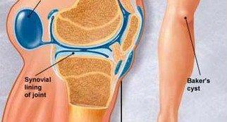 térd duzzanat artrózisos kezeléssel a könyök ízületének ligamentumainak károsodása