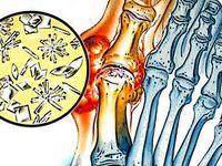 hogyan lehet érzésteleníteni a fájdalmat a csípőízület coxarthrosisában kondroitin és glükózamin beadása
