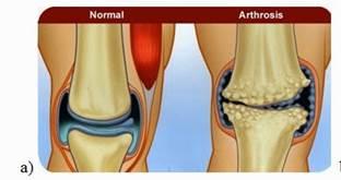 a 2. fokú artrózis kezelése a könyökízület akut, gennyes ízületi gyulladása