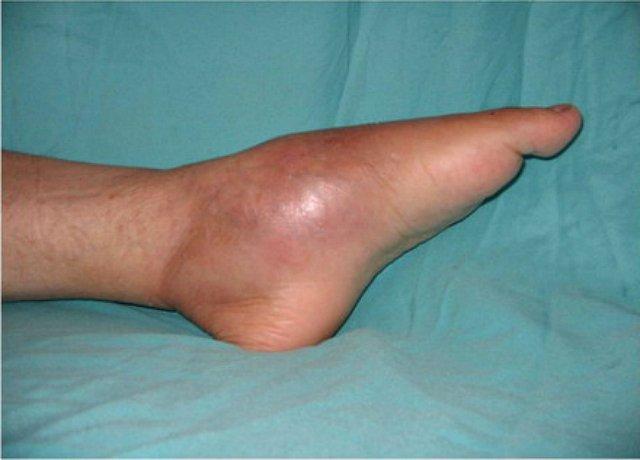 a boka akut, gennyes ízületi gyulladása fájdalom a vállízületeken