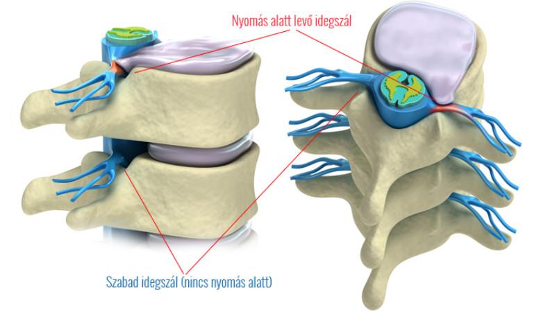 a coccygealis gerinc kezelés artrózisa