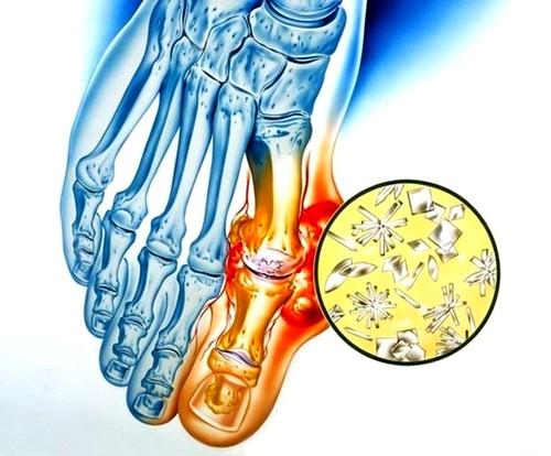 a csípőízület megsemmisül, hogyan lehet enyhíteni a fájdalmat kenőcskezelő térdízület