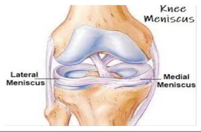 a jobb ízület mediális meniszkuszának károsodása mitől fáj a hátam jobb oldalt
