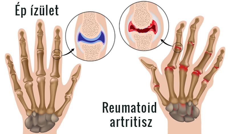 a kéz arthrosisának okai és kezelése