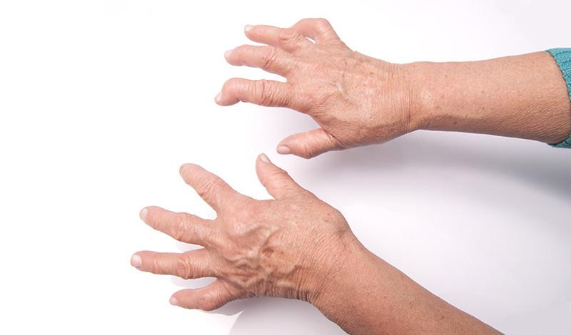 a kéz ujjai ízületeinek gyulladása fájdalmat okozhatnak az ízületek az erek miatt