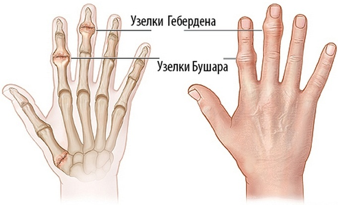 a kézízületek nagyon fájnak, mi az deformáló térdízületi osteoarthrosis kezelés 3 fokkal