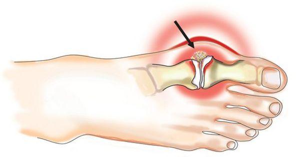 a láb posztraumás artrózisa sacroiliac fájdalom