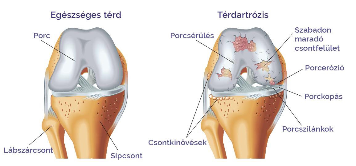a láb posztraumás artrózisa vehetek-e kondroitint glükózamin nélkül