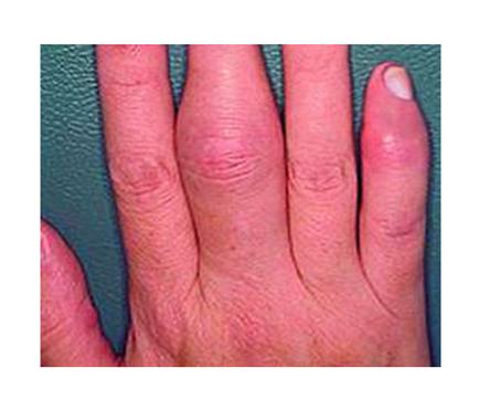 a lábujjak posztraumás ízületi gyulladása gyógyítja a térd súlyos fájdalmát