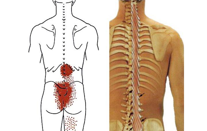 a nyaki gerinc kezelés deformáló ízületi kezelése térdízületi kezelés meniszkusz károsodása